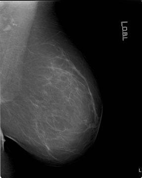 durchsichtige einfache Brust